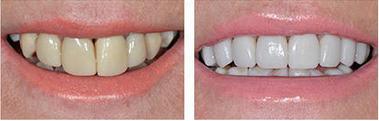 correct your teeth